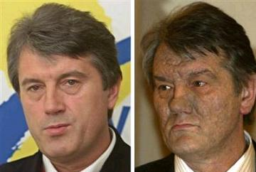 Yushchenko, before and after